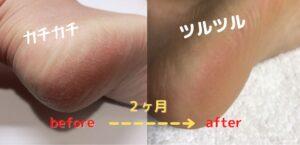 heel-beauty-change